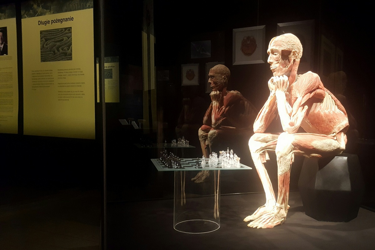 Wystawa ludzkich ciał w Pestce - Michał Jędrkowiak