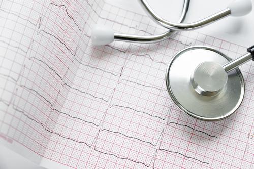 badania medyczne wykres akcja serca lekarz medycyna - Fotolia