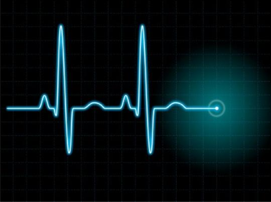 EKG - wykres - Radio Merkury