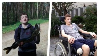 Potrzebne pieniądze na leczenie 16-letniego Nikodema z Piły
