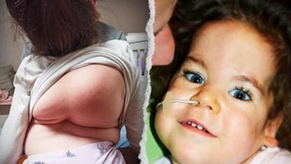 Trwa walka o życie Ani. Kręgosłup odbiera jej oddech