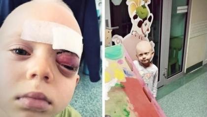 Rak próbuje zabrać życie pięcioletniego chłopca